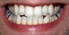Décodage dentaire et personnalité dans Tests de personnalité dents