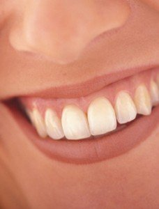 Le sens sacré des dents dans Tests de personnalité implant_dentaire-228x300