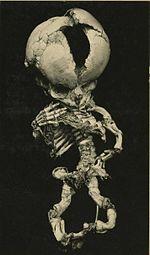 150px-3543060175_bc2043c640_bSqueletteFoetus